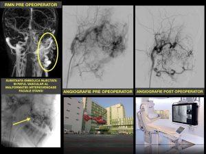 Premieră: procedură de embolizare a unei malformații arteriovenoase faciale de mari dimensiuni
